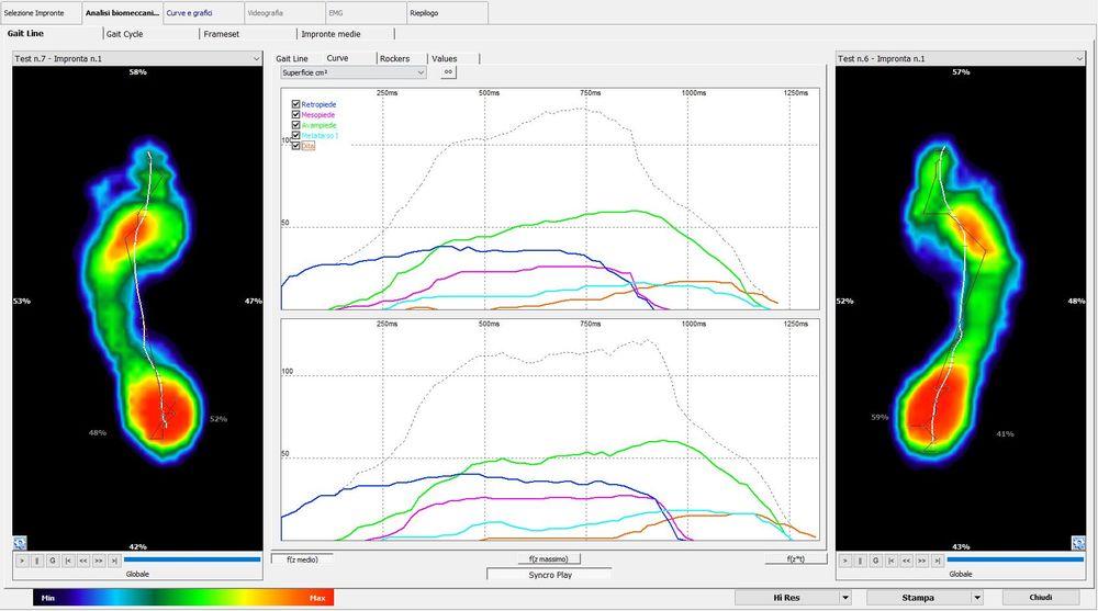 Baropodometria Grafici_corrado-