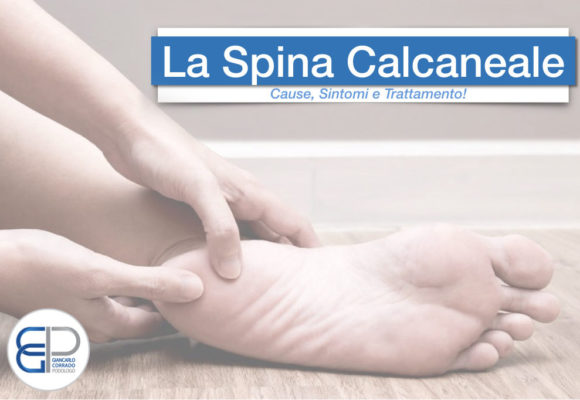 La Spina Calcaneale: Cause, Sintomi e Trattamento